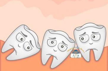 Poussée dents